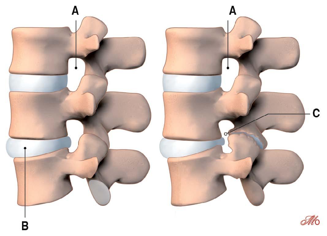 Pincement discal : Comprendre toute la complexité de la hernie discale et de son pincement, conséquence